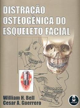 DISTRACAO OSTEOGENICA DO ESQUELETO FACIAL