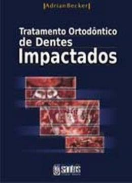 TRATAMENTO ORTODONTICO DE DENTES IMPACTADOS