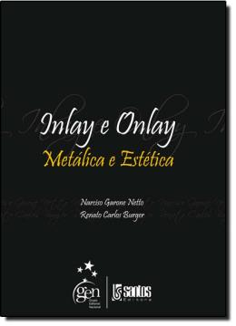 INLAY E ONLAY - METALICA E ESTETICA