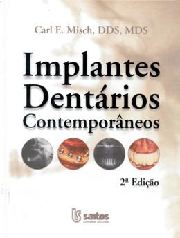 IMPLANTES DENTARIOS CONTEMPORANEOS - 2ª EDICAO