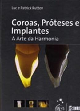 COROAS, PROTESES E IMPLANTES - A ARTE DA HARMONIA