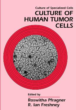 CULTURE OF HUMAN TUMOR CELLS