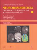 NEURORRADIOLOGIA DIAGNOSTICOS POR IMAGENS DAS ALTERACOES ENCEFALICAS