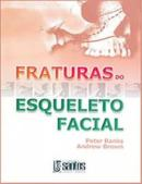 FRATURAS DO ESQUELETO FACIAL