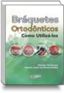 BRAQUETES ORTODONTICOS: COMO UTILIZA LOS